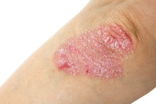 the occurrence of psoriasis
